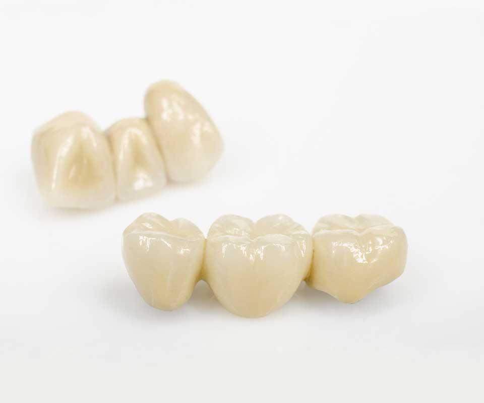 Dental Bridges - Jones Dental