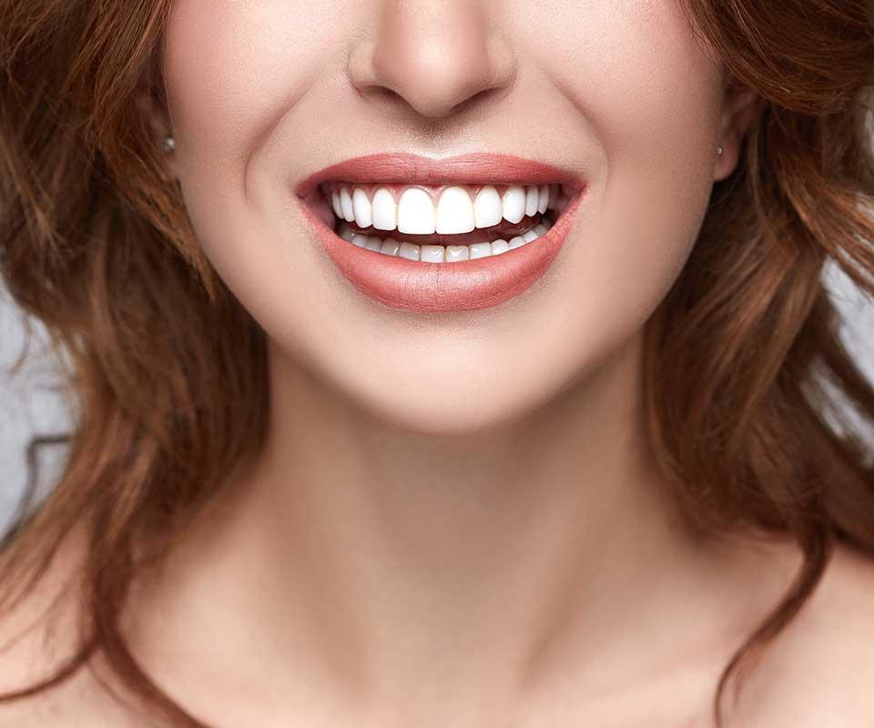Dental Veneers - Jones Dental Wollongong